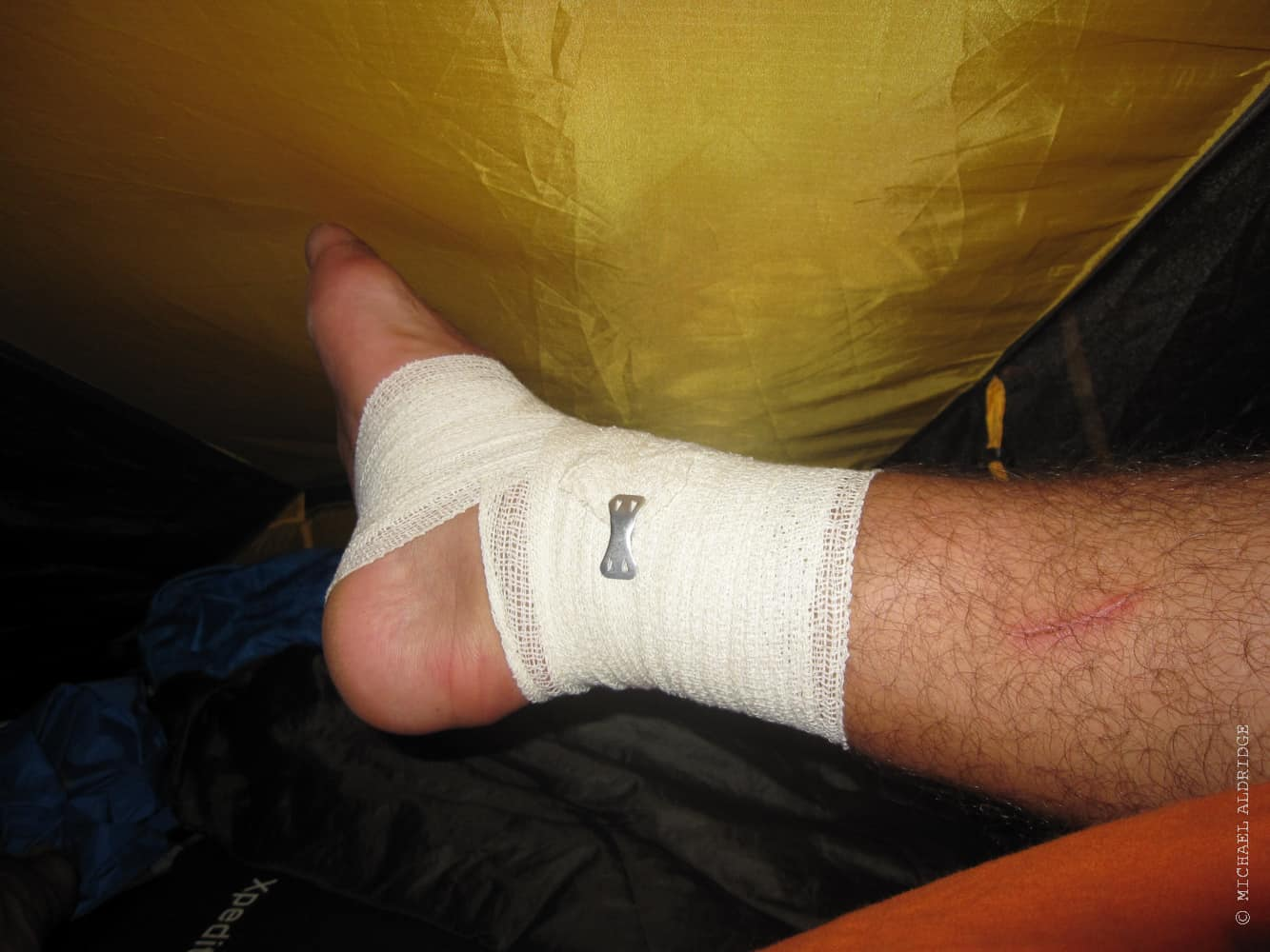 Ankle Injury during the bike trip